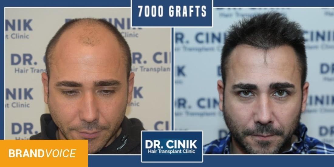 Greffe de cheveux : comment ça marche ?